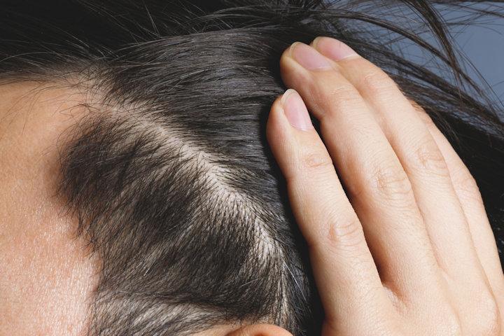 白髪を黒髪に回復させることは可能?