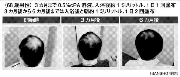 NaPAの育毛効果