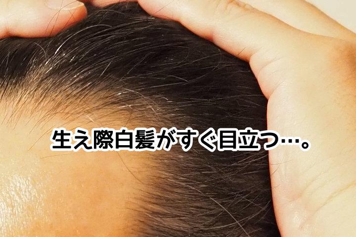 生え際白髪がすぐ目立つ…。